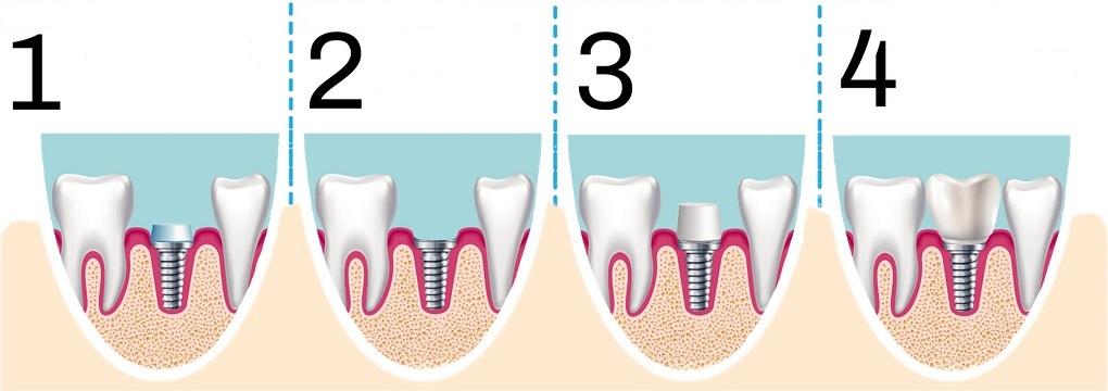 implant-tedavisi-sureci