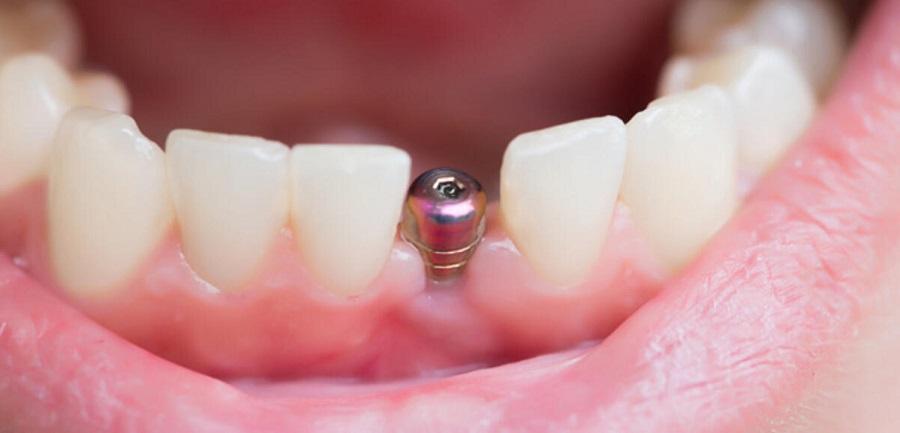 implant faydaları